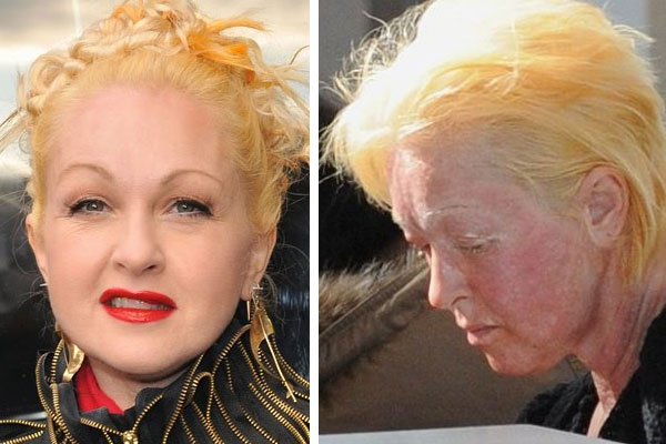cyndi lauper before and after