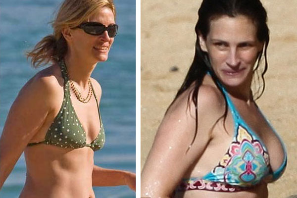 julia roberts breast augmentation