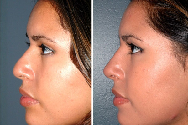 nose_jobs_before_and_after