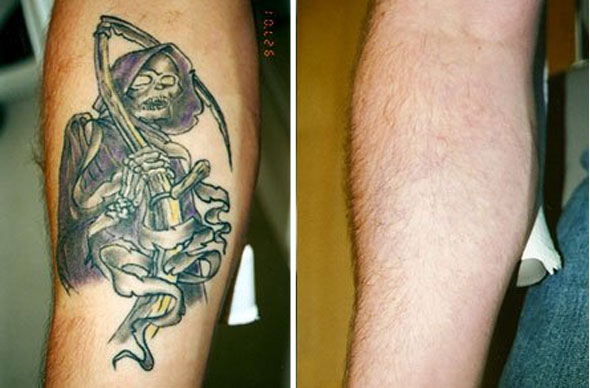 tattoo removal before after. tattoo removal