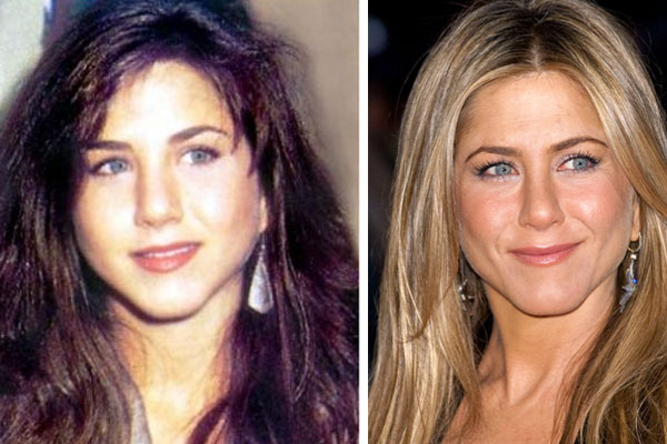 Jennifer Aniston Plastic Surgery What Has She Had Done