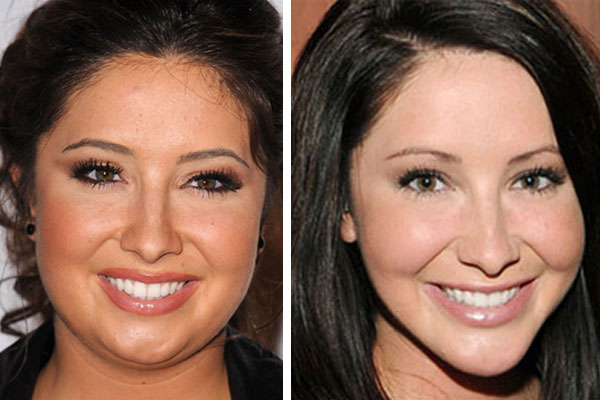 Bristol Palin Jacked up her Face