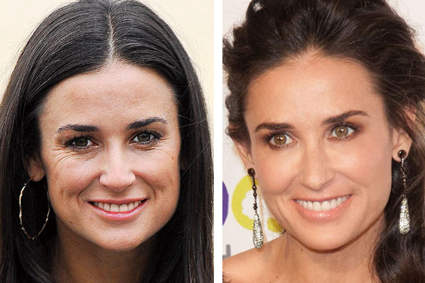 demi moore facial filler
