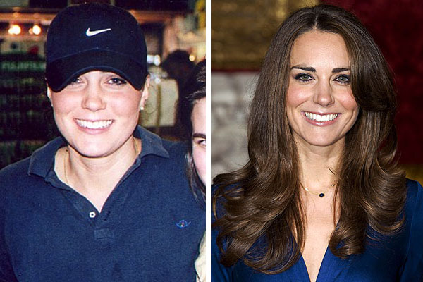 kate middleton rhinoplasty