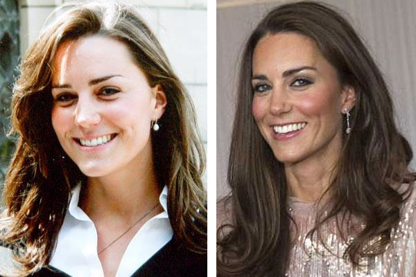 kate middleton before and after