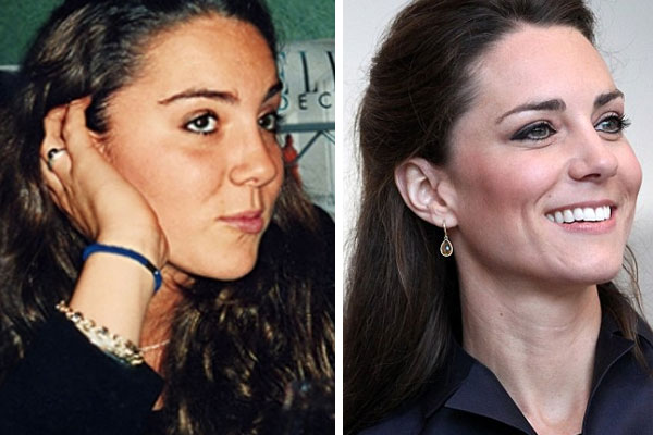 Tell us, do you think Kate has made some tweaks to her nose?