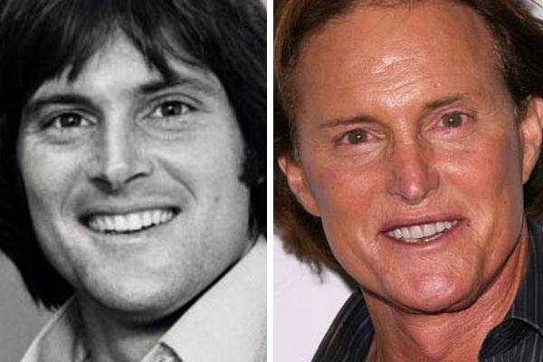 BAD Plastic Surgery Awards – Bruce Jenner