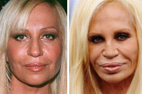 BAD Plastic Surgery Awards – Donatella Versace