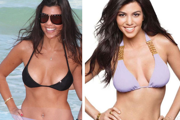 Kardashian Family Plastic Surgery(s)