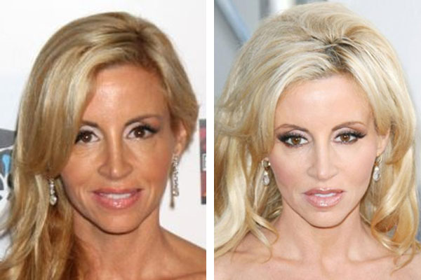 Did Camille Grammer Get MORE Plastic Surgery?