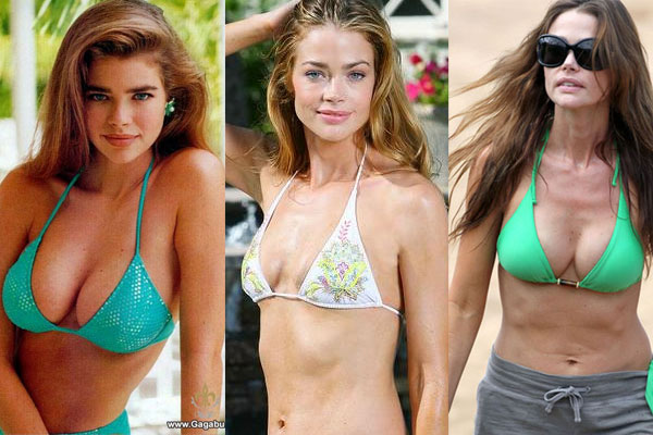 Denise Richards Explains Her Botched Boob Job