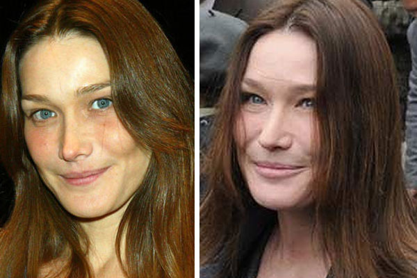 Carla Bruni Joined the Curse of the Catface Club