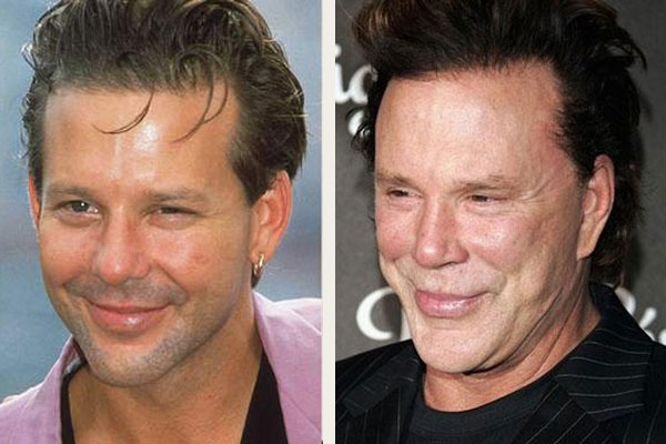 BAD Plastic Surgery Awards – Mickey Rourke