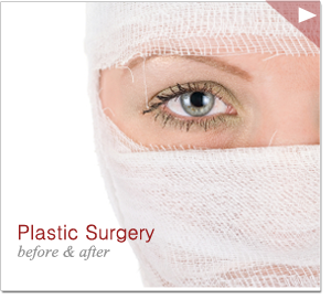 plastic surgery