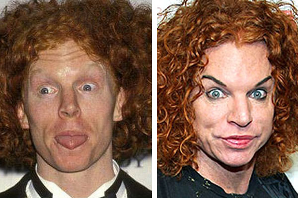 BAD Plastic Sugery Awards – Carrot Top