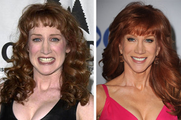 Kathy Griffen Plastic Surgery Before and After