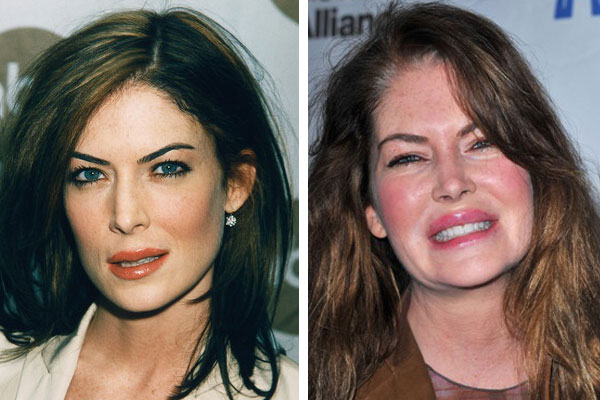 BAD Plastic Surgery Awards – Lara Flynn Boyle