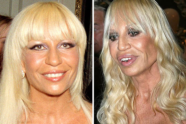 Donatella Versace Before Surgery