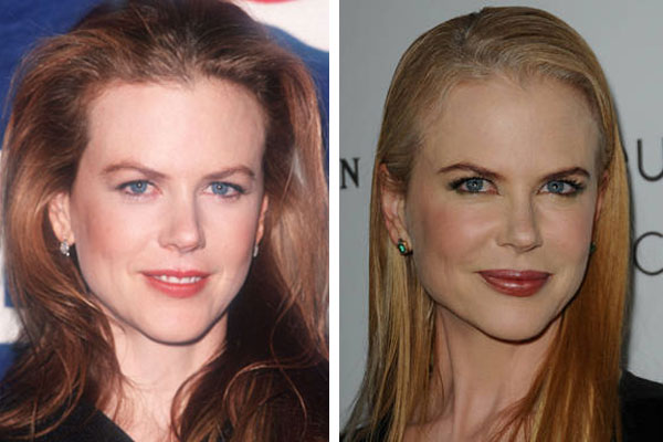 Nicole Kidman's Frozen Facial Features