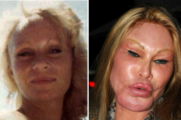 Bad Plastic Surgery Before and After