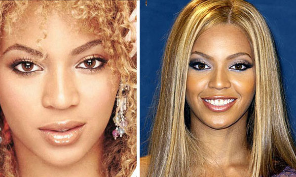 Beyonce Nose Before and After